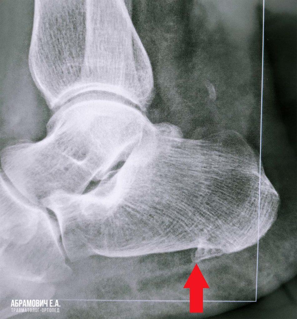 Пяточная шпора на рентгене как выглядит