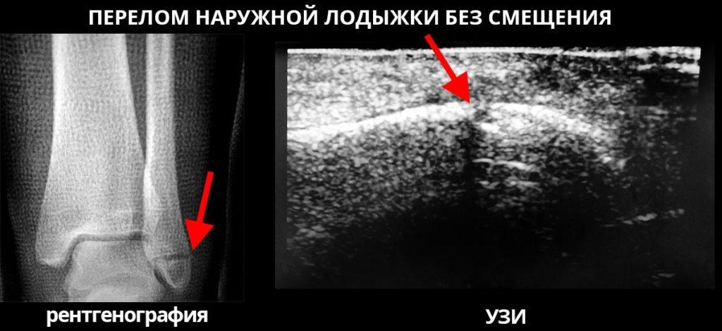 Сравнения методик диагностики перелома