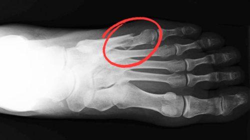 Как лечить перелом плюсневой кости стопы?